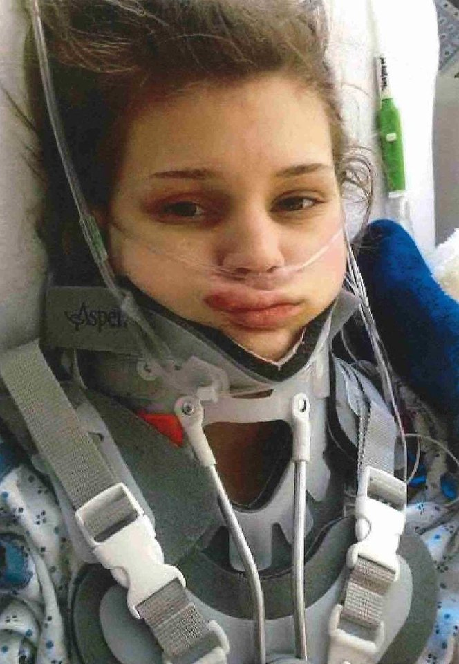 Photo -  Makenzie Wethington survived a 3,500-foot fall after her parachute malfunctioned on Jan. 25, 2014. [Photo provided]