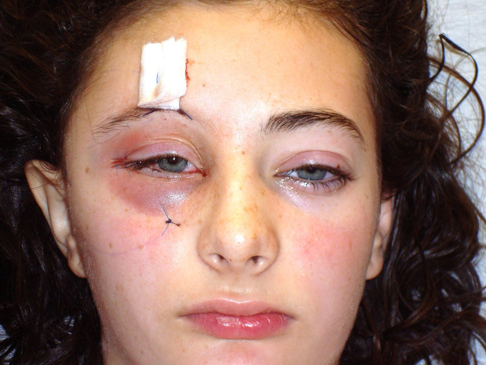 Laura Bacon is shown after reconstructive surgery in December 2008. Photos Provided