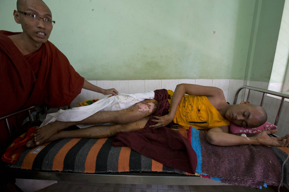 Photo - A Buddhist monks with burn injuries lies in a hospital bed in Monywa, northwestern Myanmar, Thursday, Nov. 29, 2012. Security forces cracked down on protesters occupying a copper mine early Thursday, using water cannons and other devices to break up the rally hours before opposition leader Aung San Suu Kyi was expected to hear their grievances. Unexplained fires engulfed the protest camps at the Letpadaung mine in northwestern Myanmar and dozens of Buddhist monks and villagers were injured, according to several protesters. (AP Photo/Gemunu Amarasinghe)
