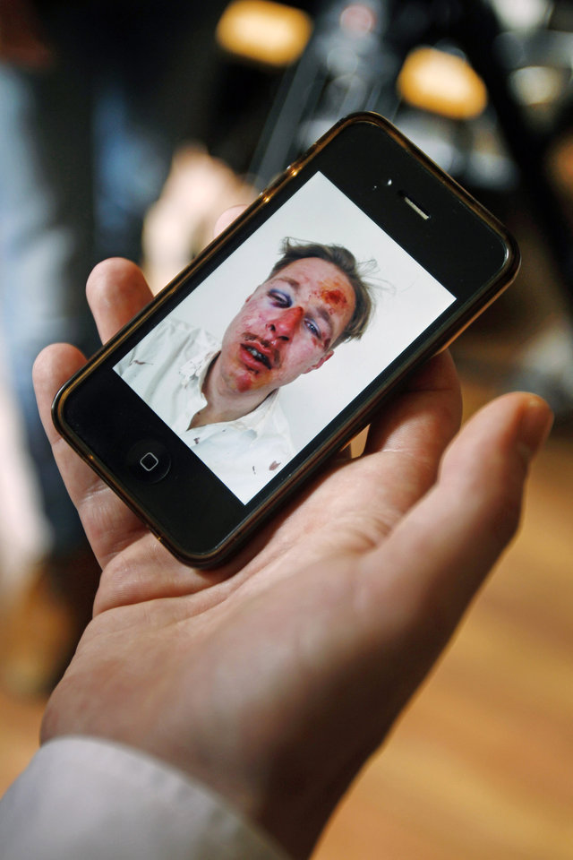 Photo - Wilfred de Bruijn, a Dutch citizen who lives and works as a librarian in Paris, France, shows a photo of his face shot by his friend after he was beaten, during an interview with The Associated Press at his apartment in Paris, Wednesday, April 10, 2013. de Bruijn was beaten unconscious near his home early Sunday morning in central Paris, sustaining 5 fractures in his head and face, abrasions and a lost tooth. After posting a photo of his wounds on Facebook, the image went viral and de Bruijn has become a national cause celebre of the pro-gay campaign. (AP Photo/Remy de la Mauviniere)