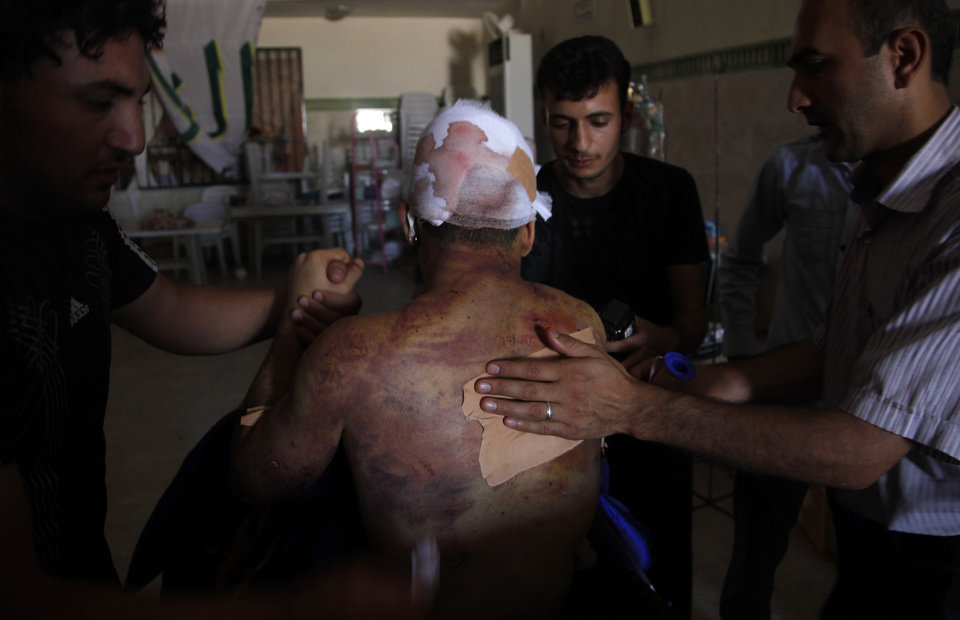 Photo -   Palestinian refugee Mohammed, second name not given, 21, receives treatment in a field hospital after he was found with three gunshot wounds in town of Anadan on the outskirts of Aleppo, Syria, Monday, Aug. 6, 2012. (AP Photo)