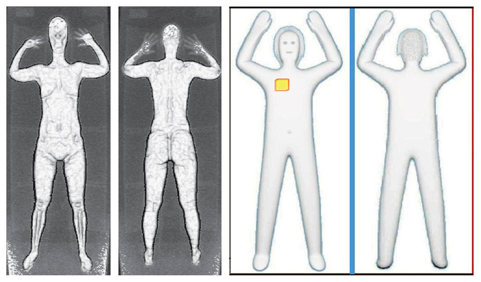 These two sets of images provided by the Transportation Security Administration are samples that show details of what TSA officers see on computer monitors when passengers pass through airport body scanners.  AP Photo