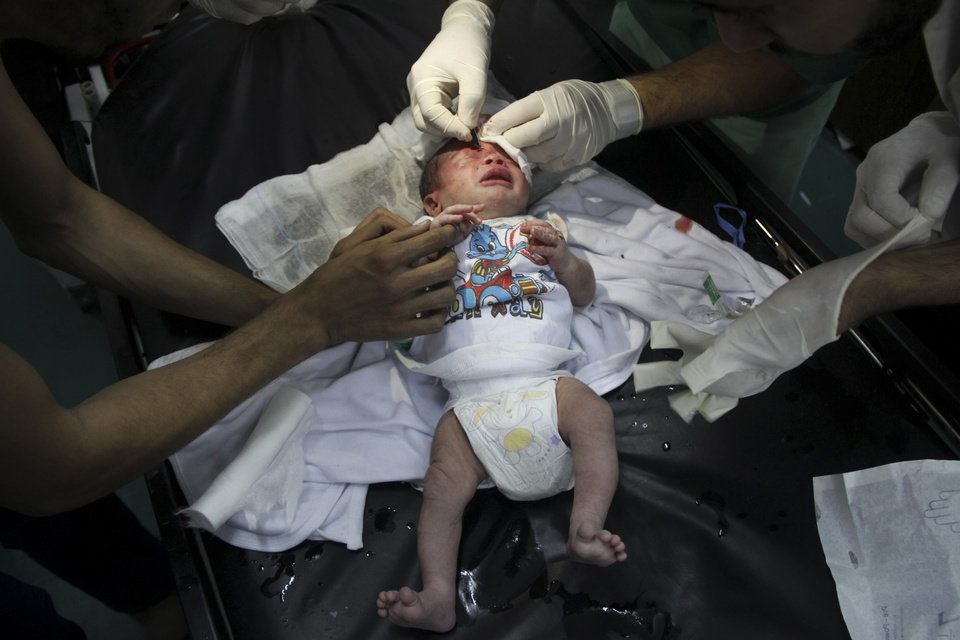 Photo - Palestinian doctors treats an injured baby, following an Israeli airstrike on a building, at the treatment room of al Najar hospital in Rafah in the southern Gaza Strip, Thursday, Aug. 21, 2014. (AP Photo/Hatem Ali)