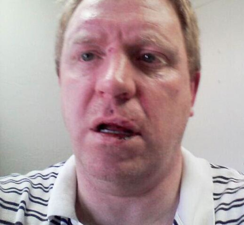 Michael Wayne Thomas Shown after being assaulted in July.