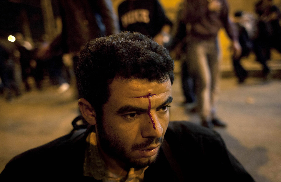 An injured Egyptian anti-government protester waits for medical care during clashes between supporters of president Mohammed Morsi and their rivals in front of the president palace, in Cairo, Egypt, Wednesday, Dec. 5, 2012. Supporters and opponents of Egyptian leader Mohammed Morsi fought with rocks, firebombs and sticks outside the presidential palace in Cairo on Wednesday, as a new round of protests deepened the country's political crisis. (AP Photo/Nasser Nasser)