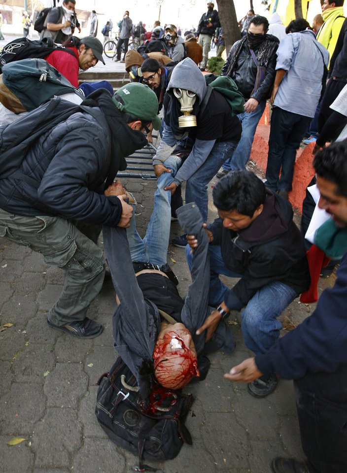 Photo - A seriously injured man is carried by demonstrators after he was hit with a tear gas canister shot by riot police during protests against new Mexican President Enrique Pena Nieto's rule, outside the National Congress, in Mexico City, Saturday, Dec. 1, 2012.   Pena Nieto took the oath of office as Mexico's new president on Saturday amid protests inside and outside the congressional chamber where he swore to protect the constitution and laws of the land. At least two protesters were injured, one gravely.(AP Photo/Marco Ugarte)