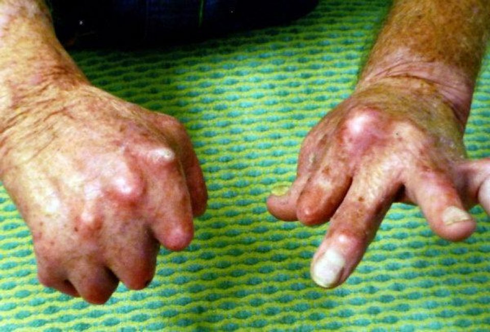 Provided photos of Richard Edwards hands after they were burned in an accident in 2006. Provided
