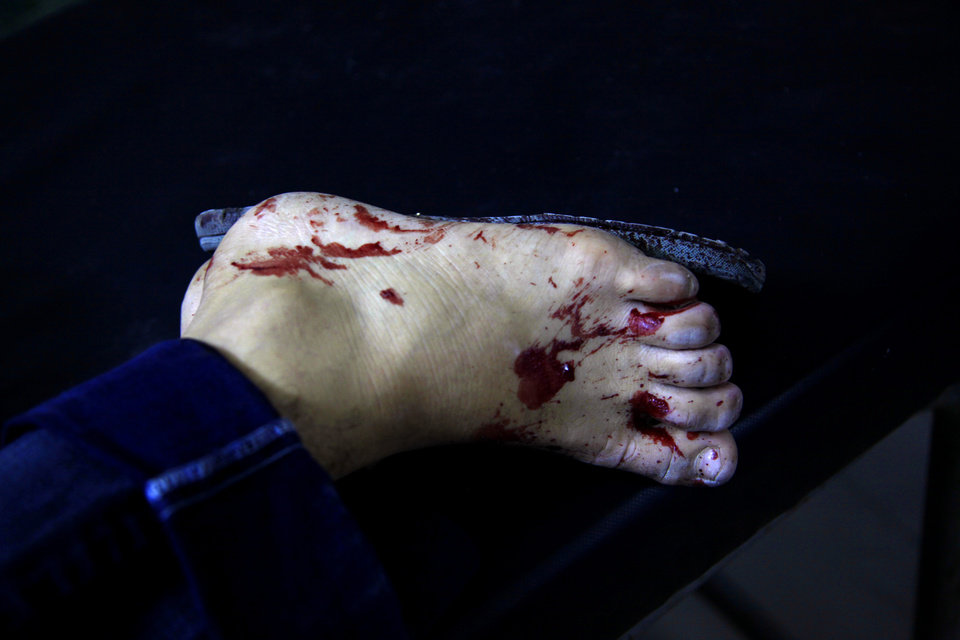Photo -   Blood is seen on a foot of an injured Syrian man while he receives treatment at a field hospital in Aleppo city, Syria, Friday, Aug. 17, 2012. Rebel footholds in Aleppo have been the target of weeks of Syrian shelling and air attacks as part of wider offensives by President Bashar Assad's regime. Rebels have been driven from some areas, but the report of clashes near the airport suggests the battles could be shifting to new fronts.(AP Photo/ Khalil Hamra)