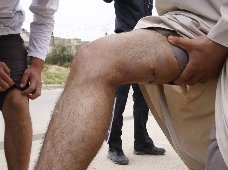 Photo -   In this picture taken during a UN observer-organized tour, anti-Syrian regime men show their injuries to the UN observers during their visit to Hama city, central Syria, on Thursday, May 3, 2012. Syrian security forces stormed dorms at a northwestern university to break up anti-government protests there, killing at least four students and wounding several others with tear gas and live ammunition, activists and opposition groups said Thursday. (AP Photo/Muzaffar Salman)