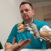 Photo - This March 2013 handout photo provided by Science Translational Medicine shows amputee Dennis Aabo Sørensen holding an orange while wearing sensory feedback enabled prosthesis in Rome. To feel what you touch _ that's the holy grail for artificial limbs. In a step toward that goal, European researchers created a robotic hand that let an amputee feel differences between a bottle, a baseball and a mandarin orange. (AP Photo/Patrizia Tocci, Science Translational Medicine)