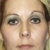 Photo - Christy Mercer , of McAlester, says a punch in the face at a 2010 Halloween party fractured in her left eye socket and left her disfigured with one eyebrow higher than the others.  PROVIDED