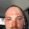 In this picture released by American magician Wayne Houchin, Houchin looks at the camera in Santo Domingo, Dominican Republic, Thursday, Nov. 29, 2012. Houchin, of Chico, California, is receiving treatment for burns after a local television show host lit his head on fire with a flammable cologne while taping his Nov. 26 appearance on the Dominican Republic\'s