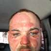 In this picture released by American magician Wayne Houchin, Houchin looks at the camera in Santo Domingo, Dominican Republic, Thursday, Nov. 29, 2012. Houchin, of Chico, California, is receiving treatment for burns after a local television show host lit his head on fire with a flammable cologne while taping his Nov. 26 appearance on the Dominican Republic's
