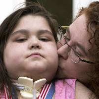 Photo - Lung transplant recipient Sarah Murnaghan, receives a kiss from her mother Janet, during a news conference after arriving home from the hospital Tuesday, Aug. 27, 2013, in Newtown Square, Pa.  Sarah Murnaghan, who has end-stage cystic fibrosis, received two lung transplants this summer at the Children's Hospital of Philadelphia after a federal judge intervened in her parents' lawsuit challenging national transplant rules that put her at the end of the waiting list for adult lungs. (AP Photo/Matt Rourke)