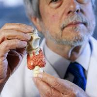 Photo - Dr. John S. Muchmore shows a model of the thyroid as he talks about thyroid removal surgery in Oklahoma City on Thursday. Photo by Bryan Terry, The Oklahoman