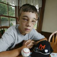 Photo - Dillon Yeaman, 15, is a pitcher recovering from a direct hit in the face from a ball hit by an aluminum baseball bat in Norman, Oklahoma on Wednesday, July 12, 2006. Photo by Steve Sisney/The Oklahoman Archives