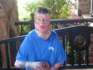 Photo -   This undated family photo shows Robbie Middleton, who was allegedly doused with gasoline and set on fire on his eighth birthday on June 28, 1998. An attorney who persuaded a Texas jury to award one of the largest civil verdicts ever says he and his clients don't expect to collect any of the $150 billion judgment, but they hope it helps persuade prosecutors to seek charges against the man they say is responsible for the attack. Middleton survived his horrific injuries for 12 years before dying last year of a rare form of skin cancer, which attorneys argued was related to the extensive burns he suffered. (AP Photo/Courtesy of the Middleton Family)