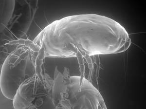 Photo - This photo by Mission: Allergy Inc. shows a house dust mite as seen with an electron microscope, enlarged about 200 times. Experts say dust's constant accumulation has nothing to do with poor housekeeping. Dust is a naturally and continually forming collection of some pretty gross stuff. AP PHOTO