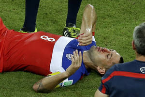 Photo - United States' Clint Dempsey lies on the pitch after being kicked in his face during the group G World Cup soccer match between Ghana and the United States at the Arena das Dunas in Natal, Brazil, Monday, June 16, 2014. (AP Photo/Hassan Ammar)