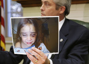 photo - Prosecutor Richard Smothermon holds up a hospital picture of Serenity Deal as he speaks to the media Friday in Shawnee. He said DHS workers suppressed this evidence of injuries the girl suffered during an overnight visit with her father, who later killed