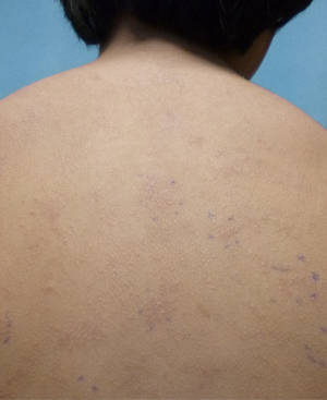 Photo - This undated photo provided by American Academy of Pediatrics shows a rash on an unidentified 11-year old boy from a nickel allergy. Case reports in medical journals detail nickel allergies from personal electronic devices, including laptops and cell phones. But it was an Apple iPad that caused an itchy body rash in this 11-year-old boy recently treated at a San Diego hospital, according to a report in Pediatrics. Nickel rashes aren't life-threatening but they can be very uncomfortable, and they may require treatment with steroids, and antibiotics if the skin eruptions become infected, said Dr. Sharon Jacob, an associate professor and dermatologist at the University of California, San Diego and Rady Children's Hospital, where the boy was treated. (AP Photo/American Academy of Pediatrics)
