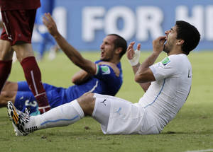 Photo - 10ThingstoSeeSports - Uruguay's Luis Suarez holds his teeth after running into Italy's Giorgio Chiellini's shoulder during the group D World Cup soccer match between Italy and Uruguay at the Arena das Dunas in Natal, Brazil, Tuesday, June 24, 2014. (AP Photo/Ricardo Mazalan, File)