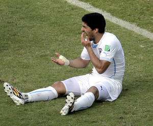 Photo - Uruguay's Luis Suarez holds his teeth after running into Italy's Giorgio Chiellini's shoulder during the group D World Cup soccer match between Italy and Uruguay at the Arena das Dunas in Natal, Brazil, Tuesday, June 24, 2014. (AP Photo/Hassan Ammar)