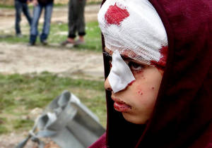 photo - This citizen journalism image provided by Aleppo Media Center AMC which has been authenticated based on its contents and other AP reporting, shows a Syrian child, injured by heavy bombing from military warplanes, in the town of Hanano in Aleppo, Syria, Friday, March 1, 2013. Syrian government forces fought fierce clashes with rebels attacking a police academy near the northern city of Aleppo on Friday, while the bodies of 10 men most of them shot in the head were found dumped along the side of a road outside Damascus, activists said. (AP Photo/Aleppo Media Center AMC)