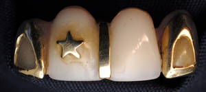photo - Edmond police released a photo of a dental plate that was found on the body of Hispanic man along Interstate 35.  PHOTOS PROVIDED