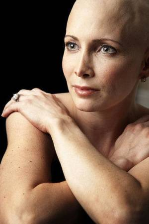 Photo - Olympic medal winner Shannon Miller shown during her cancer treatment this spring. <strong>Provided</strong>