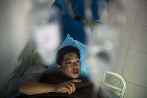Photo - In this photo released by China's Xinhua News Agency, miner Duan Xukang receives a treatment at a hospital in Fukang City, northwest China's Xinjiang Uygur Autonomous Region, after being rescued following a gas explosion at a coal mine in western China, Sunday, July 6, 2014. Rescuers on Sunday worked to free 17 miners trapped following the blast at the mine that happened on Saturday evening, according to the news agency.  (AP Photo/Xinhua, Jiang Wenyao) NO SALES