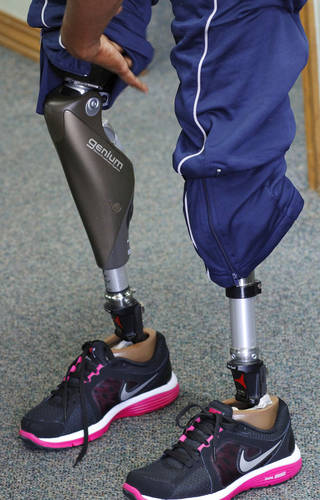 Kari Miller, a member of the USA sitting volleyball team, shows her two prosthetici legs, which she won't be wearing during the 2012 Paralympics Games in London. PHOTO BY JIM BECKEL, THE OKLAHOMAN. Jim Beckel - THE OKLAHOMAN