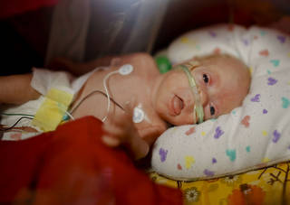Cerenity Sage Easter lies in an incubator in the neonatal intensive care unit at Mercy Hospital Oklahoma City. Cerenity was born weighing about 1 pound 3 ounces at 25 weeks and six days to Rachel Plymale and Bradley Easter on Sept. 29. Born about 15 weeks early, Cerenity was born with lungs that weren't finished developing. CHRIS LANDSBERGER - CHRIS LANDSBERGER