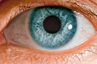 Eyes are more than just for show; doctors can diagnose a number of diseases or conditions just through an eye exam. The state of your eyes can give you major clues to what is happening to your body. (DepositPhotos)
