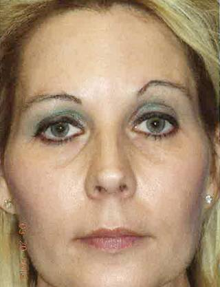 Christy Mercer , of McAlester, says a punch in the face at a 2010 Halloween party fractured in her left eye socket and left her disfigured with one eyebrow higher than the others. PROVIDED