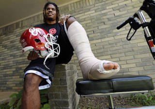 Former University of Oklahoma (OU) football star Dom Whaley shows bandages around his ankle following last week's surgery on Thursday, June 20, 2013, in Norman, Okla. Photo by Steve Sisney, The Oklahoman