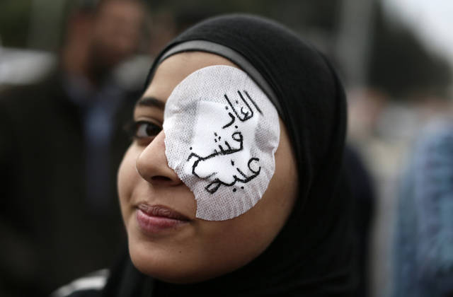 "An Egyptian protester wears an eye patch during an anti Muslim Brotherhood demonstration outside the presidential palace, in Cairo, Egypt, Wednesday, Dec. 5, 2012. Supporters of Morsi and opponents clashed outside the presidential palace. Wednesday�s clashes began when thousands of Islamist supporters of Morsi descended on the area around the palace where some 300 of his opponents were staging a sit-in. Arabic on the eye patch reads, ""tear gas damaged my eye."" (AP Photo/Hassan Ammar)"