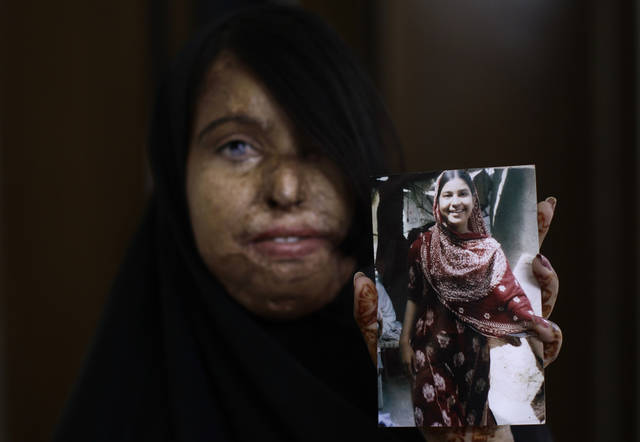"In this Tuesday, May 22, 2012 photo, Pakistani acid attack survivor, Naila Farhat, 22, holds a picture of herself before the attack, at the Acid Survivors Foundation (ASF), in Islamabad, Pakistan. Naila was attacked in 2003 by her teacher's friend, after her parents refused his marriage proposal. The nose has special significance in Pakistani culture, where it symbolizes the honor of the family. A popular plea from parents to children is ""Please take care of our nose"", which means ""don't do anything that tarnishes the name of the family."" (AP Photo/Muhammed Muheisen)"