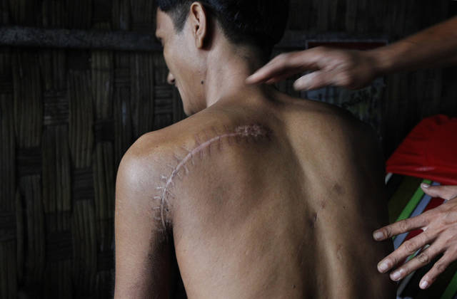 In this photo Aug. 2, 2012 photo, a Rakhine man shows his back that was slashed with a machete when he ran from his burning home in recent violence in Sittwe township, Rakhine state, western Myanmar. Stranded beside their decrepit flotilla of wooden boats, on a muddy beach far from home, the Muslim refugees tell story after terrifying story of their exodus from a once-peaceful town on Myanmar's western coast. (AP Photo/Khin Maung Win)