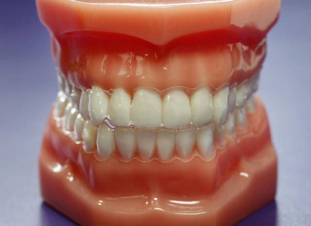 Below: Samples of types of braces that are used on adults are shown below at The Brace Place in Edmond.