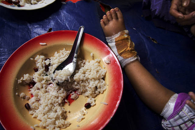 In this Oct. 19, 2011 photo released by Partners Relief and Development, the foot of a 2-year-old girl is seen bandaged next to her food at a temporary clinic in a jungle outside Nam Lim Pa, Kachin state, Myanmar. Myanmar's military-backed government may have recently unveiled reforms unprecedented in half a century of despotic rule to worldwide applause. But away from the international spotlight, across large swaths of the country, its army continues to torture and kill civilians, gang rape women and turn thousands of villagers into refugees in campaigns to stamp out the world's longest running insurgencies, human rights groups say. (AP Photo/Partners Relief and Development) EDITORIAL USE ONLY NO SALES