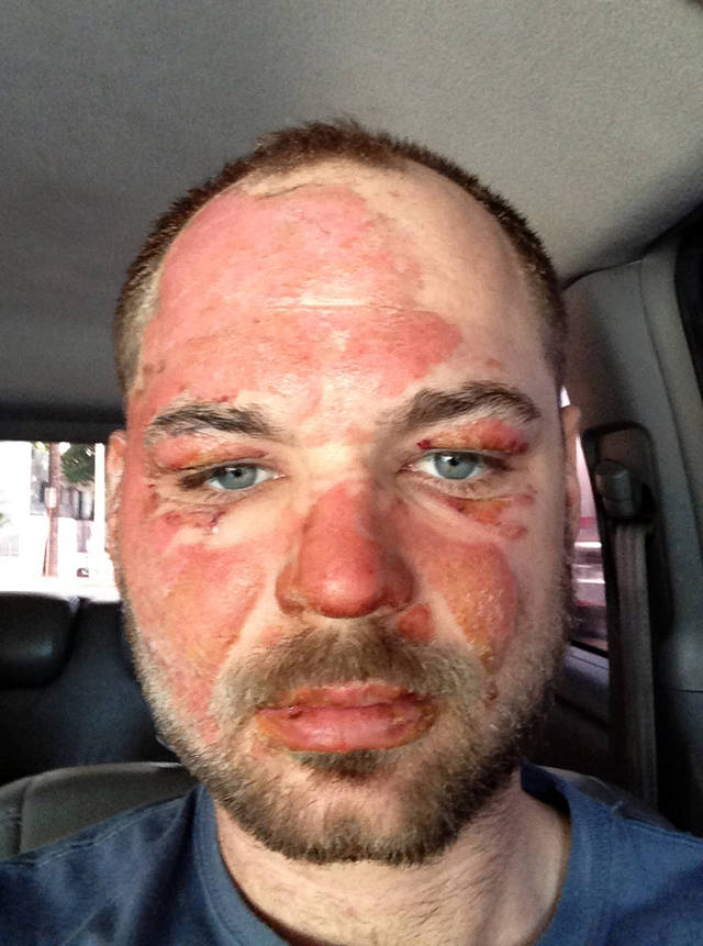 "In this picture released by American magician Wayne Houchin, Houchin looks at the camera in Santo Domingo, Dominican Republic, Thursday, Nov. 29, 2012. Houchin, of Chico, California, is receiving treatment for burns after a local television show host lit his head on fire with a flammable cologne while taping his Nov. 26 appearance on the Dominican Republic's ""Closer To The Stars"" TV program. (AP Photo)"