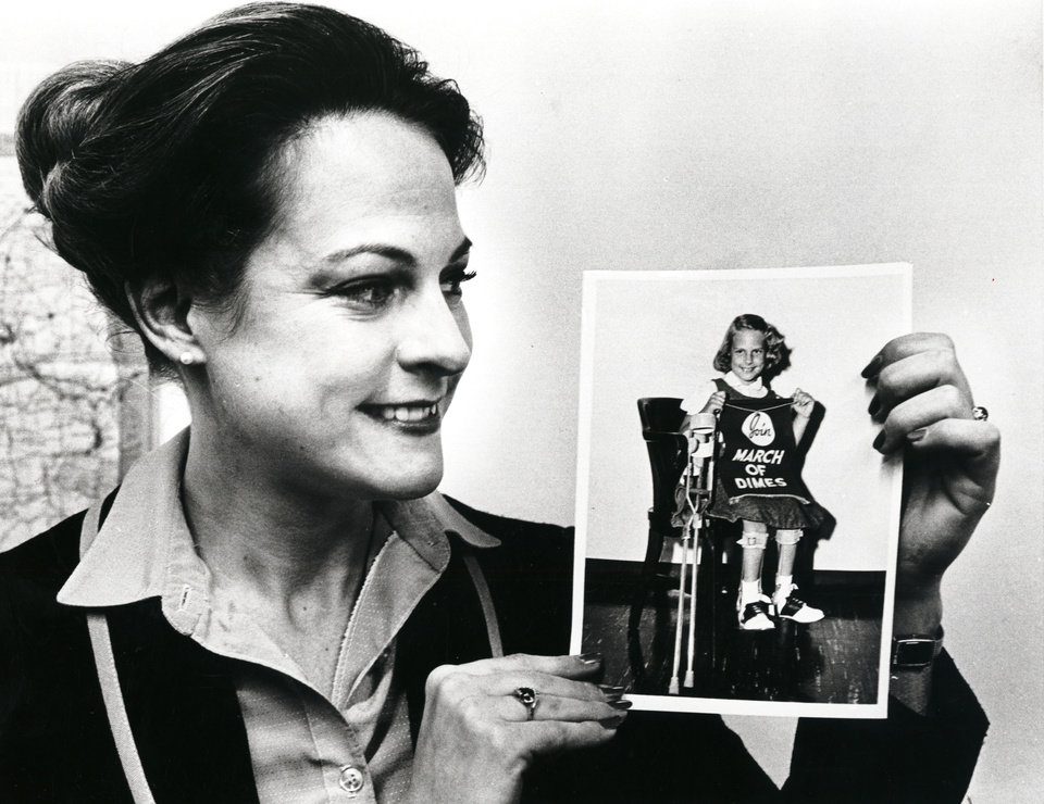 Photo - Pam Henry recalls being last polio poster girl in 1959 in this March 19, 1981 photo.  (Original photo published 3/20/1981 in The Oklahoma City Times) BY PAUL B SOUTHERLAND, THE OKLAHOMAN ORG XMIT: KOD