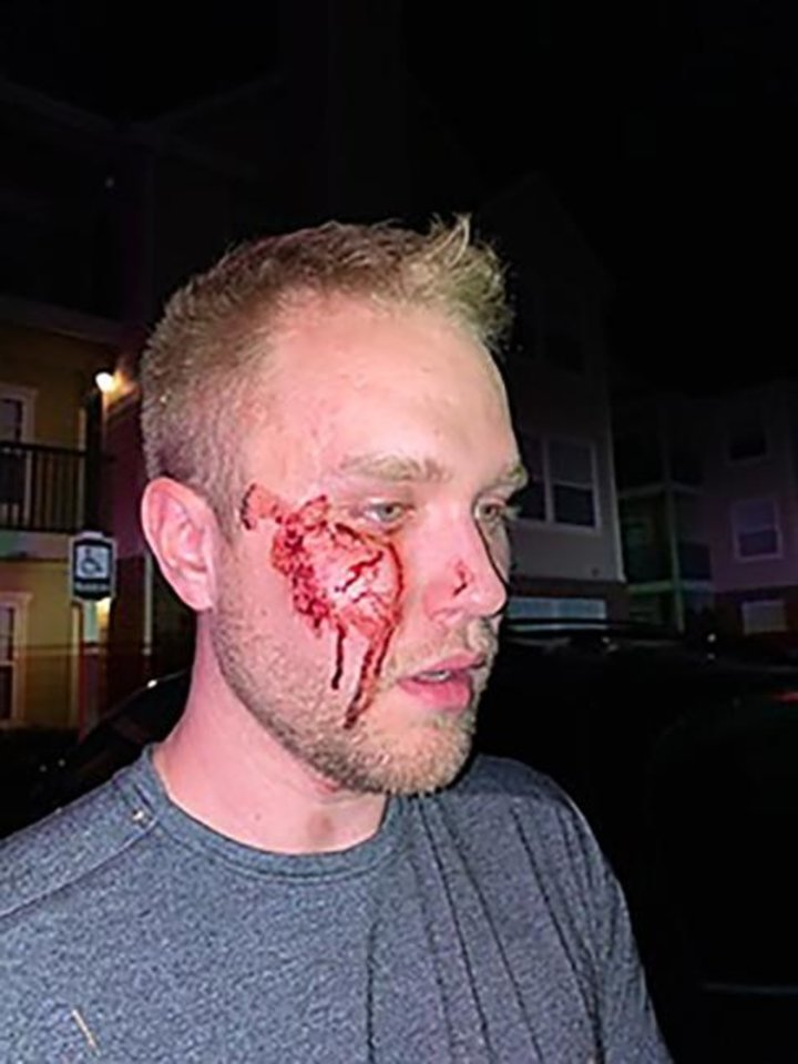 Photo -  Christian Council is photographed after he was beaten outside his Oklahoma City apartment. [PROVIDED]