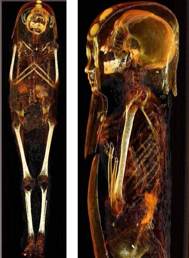 Curators from the Mabee-Gerrer Museum crated their two mummies and delivered them in 2015 to SSM Health St. Anthony Shawnee Hospital, where technicians performed CT scans. CT, or CAT scans, of the mummy known as Tutu are shown. [Provided photo]
